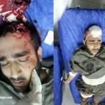 یک جوان بلوچ در شهر بندری چابهار در اثر شلیک مستقیم ماموران انتظامی کشته شد
