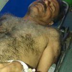 یکى از مجروحین درگیرى سپاه با سیل زدگان دشت آزادگان درگذشت + عکس دلخراش